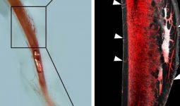 Kemiklerde Kan Damarı Sisteminin Keşfi