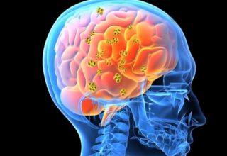 B12 Vitamini Hakkında Bilinmesi Gerekenler